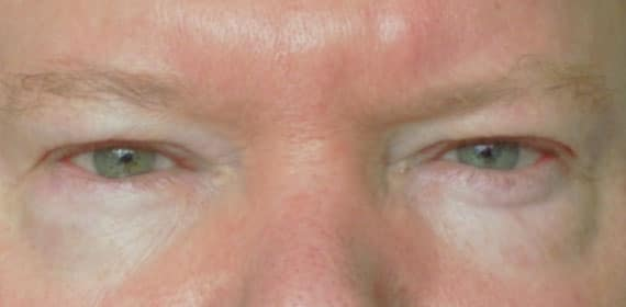Male Upper Lid Blepharoplasty - Before - Dr Angelo Tsirbas