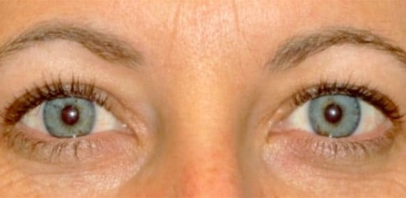 Upper Lid Blepharoplasty - After