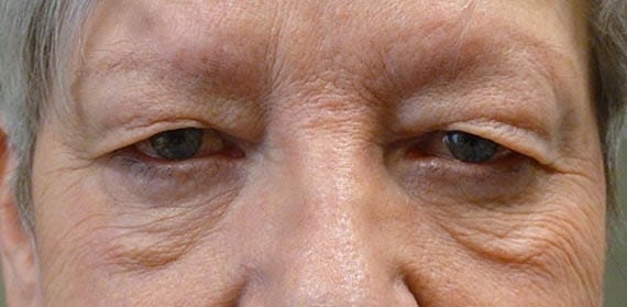 Upper and lower lid Blepharoplasty 04 - Before - Dr Angelo Tsirbas