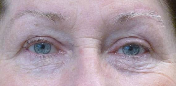Blepharoplasty Upperlid 01 After