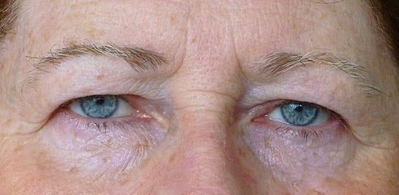 Blepharoplasty Upperlid 01 Before