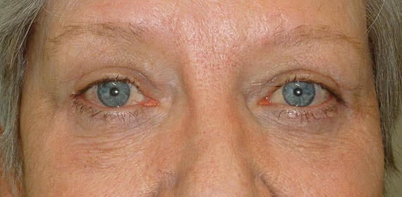 Upper and lower lid Blepharoplasty 04 - After - Dr Angelo Tsirbas